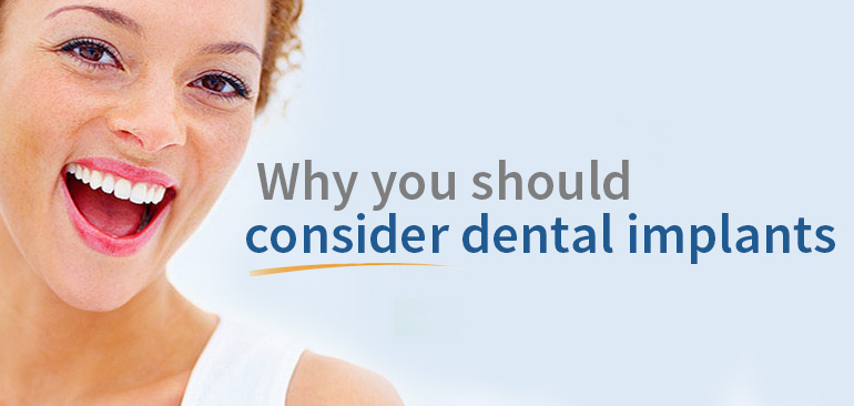 Consider dental implants