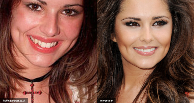 Cheryl Cole cosmetic dentistry