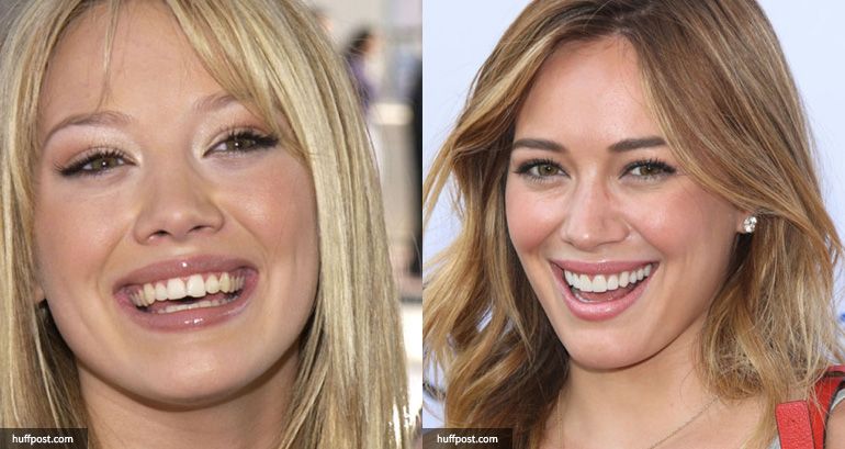 Hilary Duff cosmetic dentistry