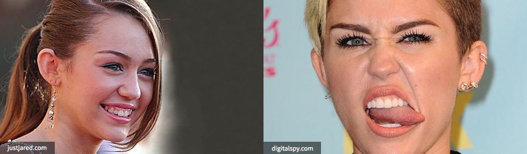 Miley Cyrus Teeth Cosmetic Surgery