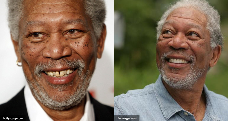 Morgan Freeman Teeth Before and After cosmetic dentistry