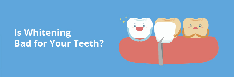 Is Whitening Bad for Your Teeth?