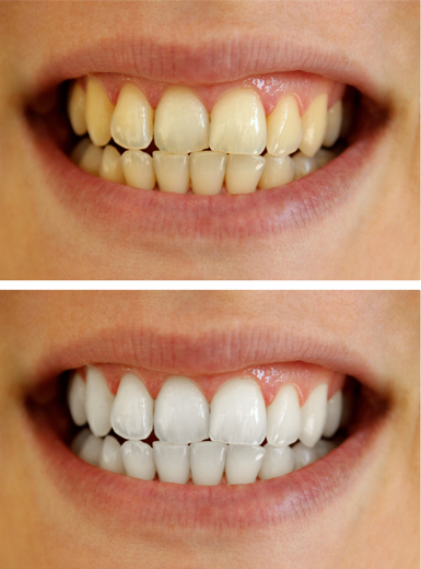 Best Teeth Whitening Methods