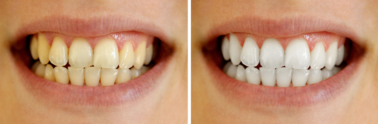 Is Whitening Bad For Your Teeth