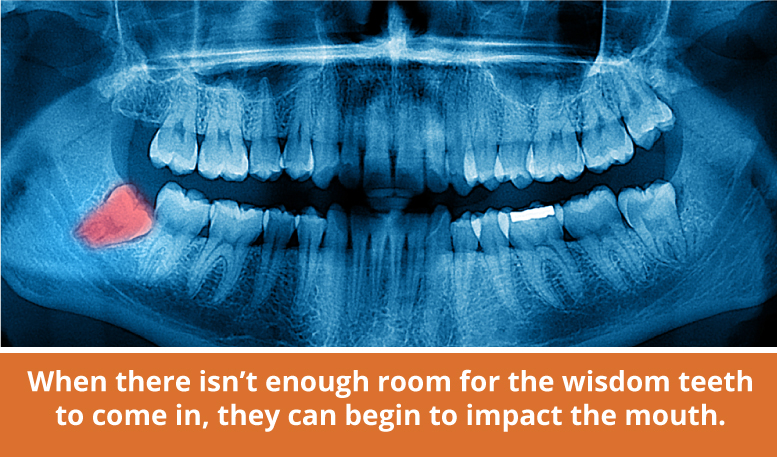 Why do wisdom teeth need removed?