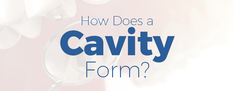 how does a cavity form
